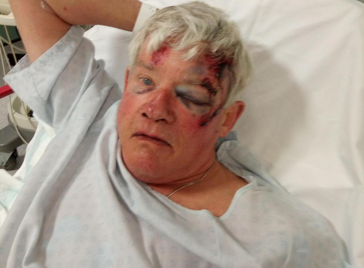 Man left with permanent dent in his skull and serious injuries after